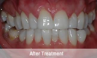 Tooth Whitening in Christchurch | Whiter Teeth | Hoburne